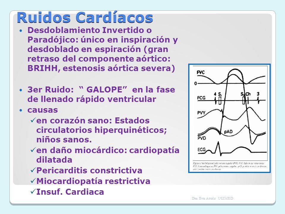 Ruidos Cardíacos