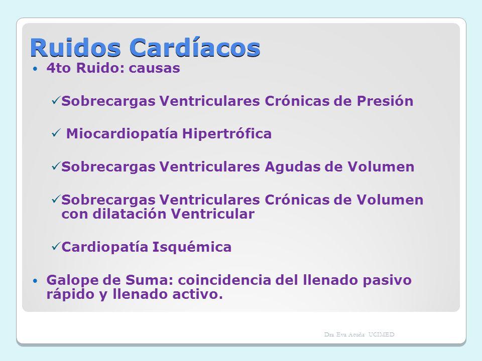 Ruidos Cardíacos 4to Ruido: causas