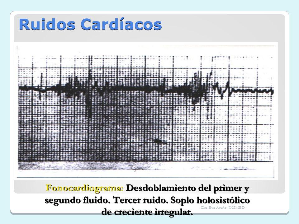 Ruidos Cardíacos Fonocardiograma: Desdoblamiento del primer y segundo fluido. Tercer ruido. Soplo holosistólico de creciente irregular.