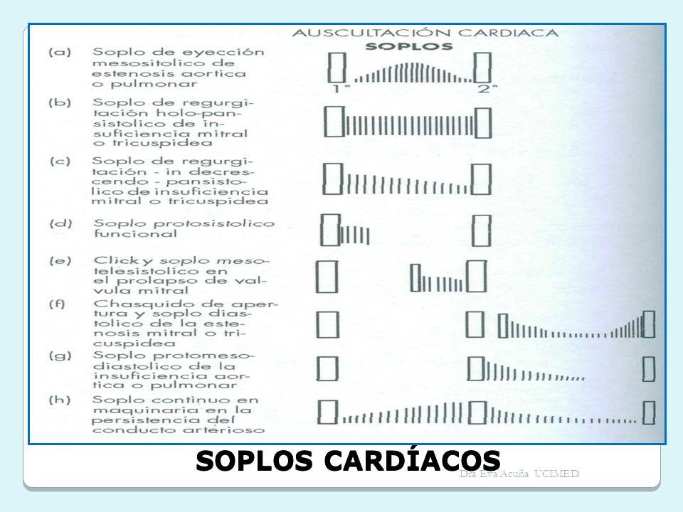 SOPLOS CARDÍACOS Dra Eva Acuña UCIMED