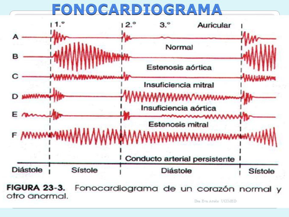 FONOCARDIOGRAMA Dra Eva Acuña UCIMED
