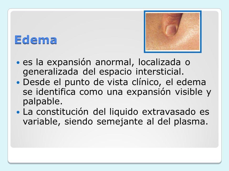 Edema es la expansión anormal, localizada o generalizada del espacio intersticial.
