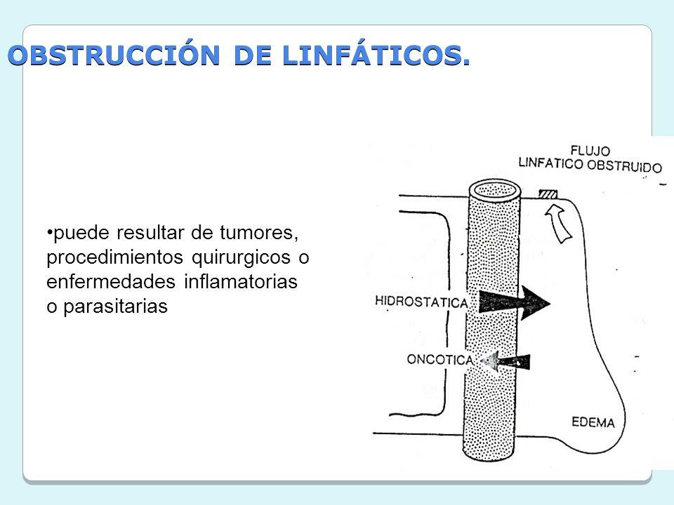 OBSTRUCCIÓN DE LINFÁTICOS.