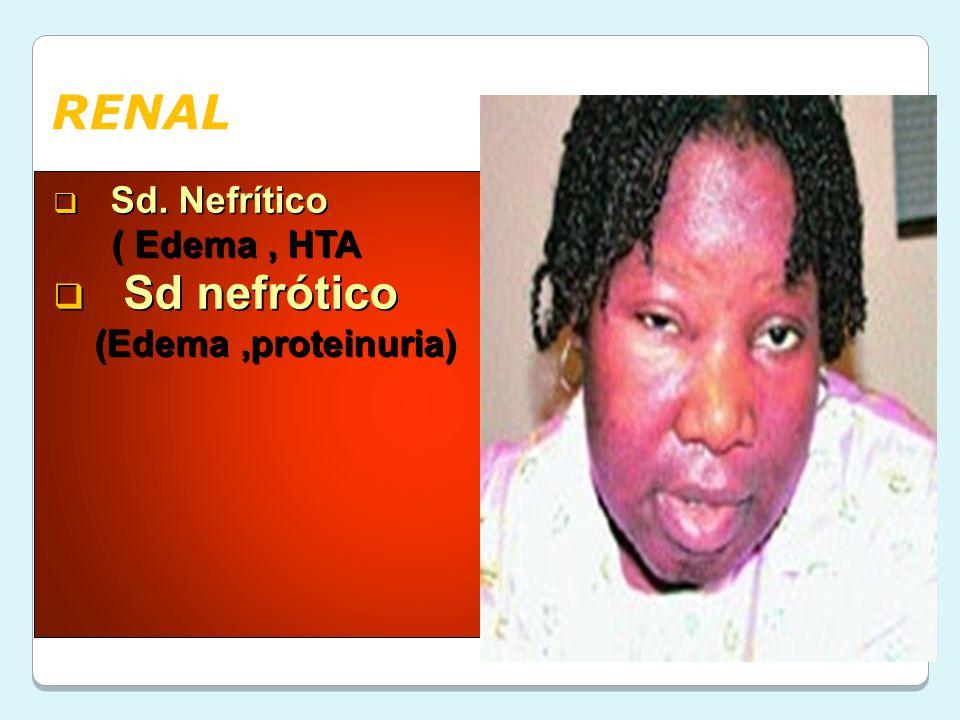 RENAL Sd. Nefrítico ( Edema , HTA Sd nefrótico (Edema ,proteinuria)