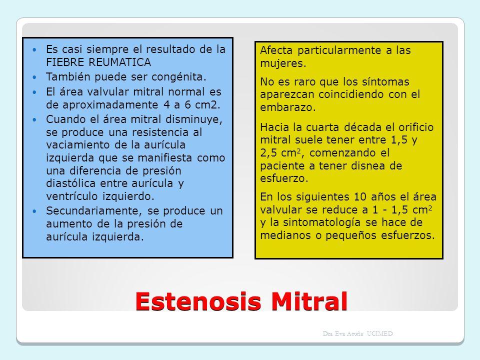 Estenosis Mitral Es casi siempre el resultado de la FIEBRE REUMATICA