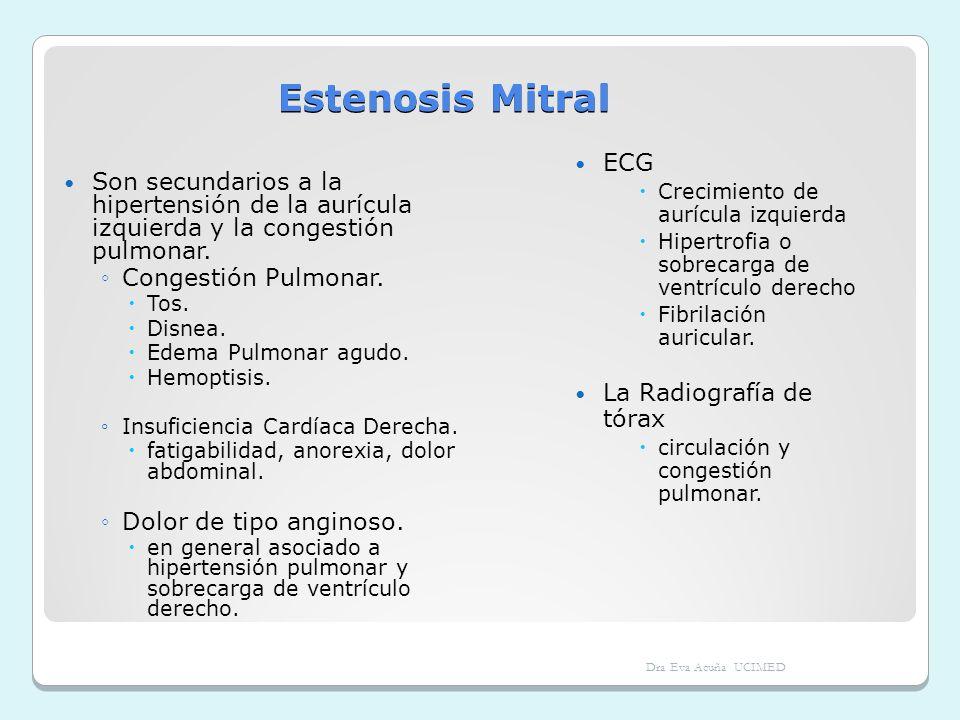 Estenosis Mitral Son secundarios a la hipertensión de la aurícula izquierda y la congestión pulmonar.