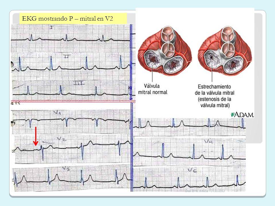 EKG mostrando P – mitral en V2