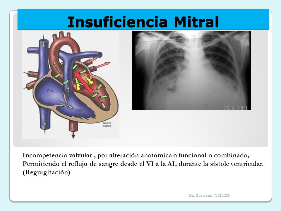 Insuficiencia MitralIncompetencia valvular , por alteración anatómica o funcional o combinada,