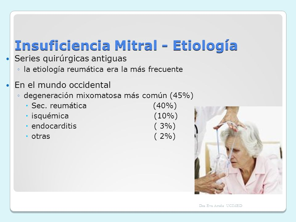 Insuficiencia Mitral - Etiología