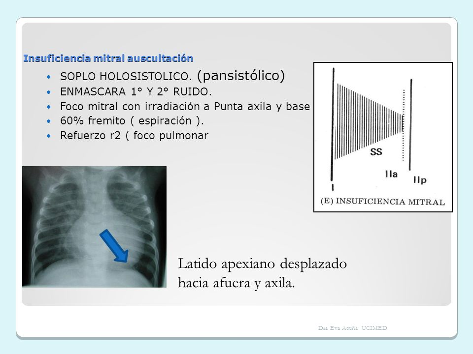 Insuficiencia mitral auscultación