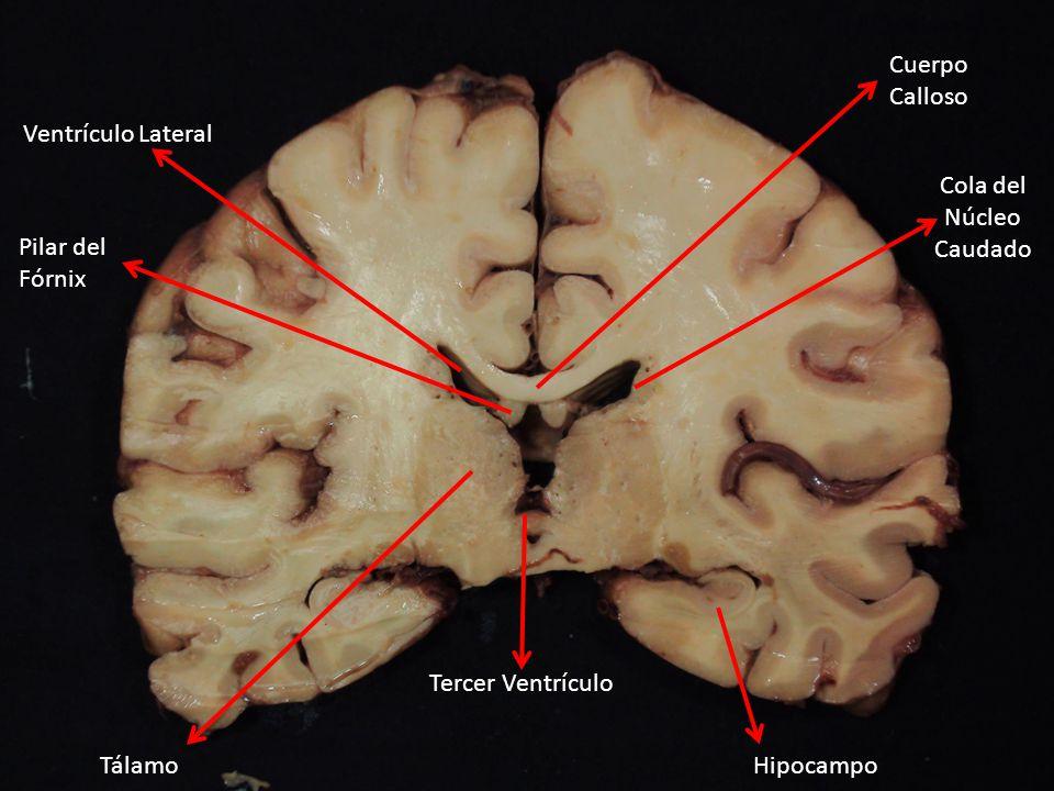 Cuerpo Calloso Ventrículo Lateral. Cola del. Núcleo. Caudado. Pilar del. Fórnix. Tercer Ventrículo.