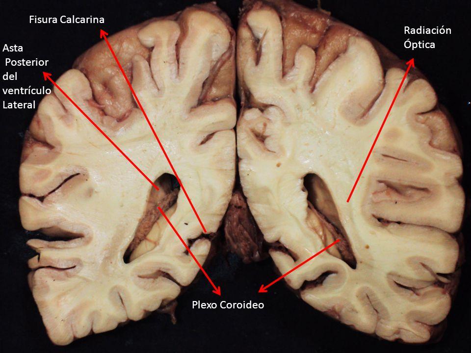 Fisura Calcarina Radiación Óptica Asta Posterior del ventrículo Lateral Plexo Coroideo