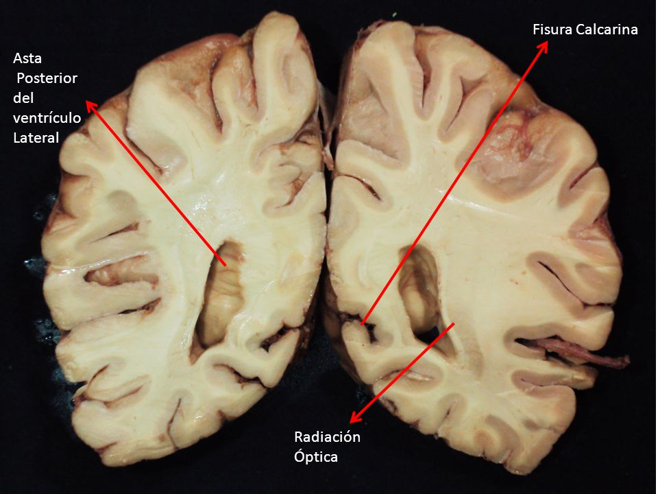 Fisura Calcarina Asta Posterior del ventrículo Lateral Radiación Óptica