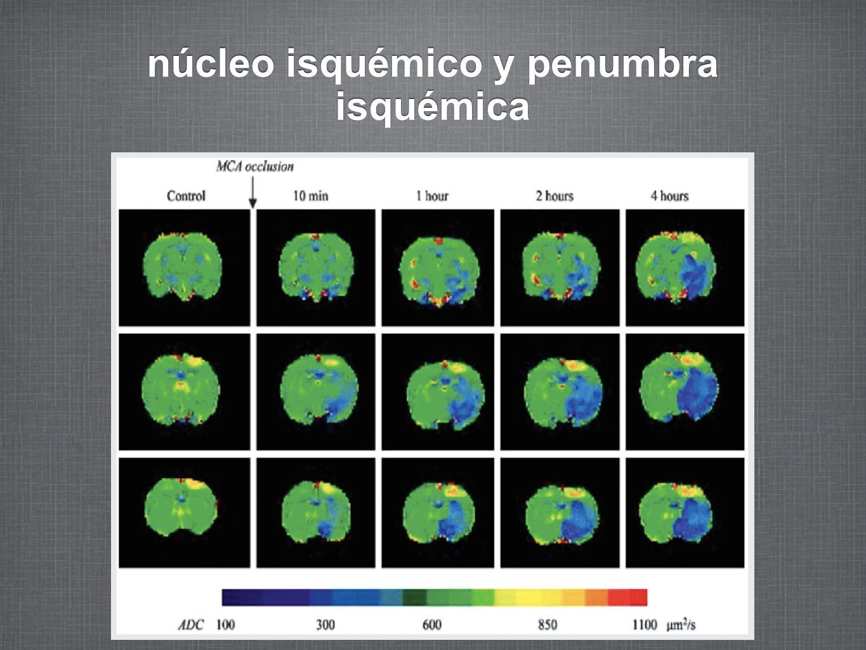 núcleo isquémico y penumbra isquémica