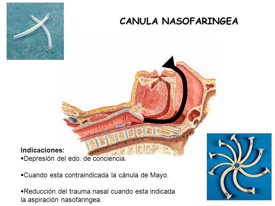CANULA NASOFARINGEA Indicaciones: Depresión del edo. de conciencia.
