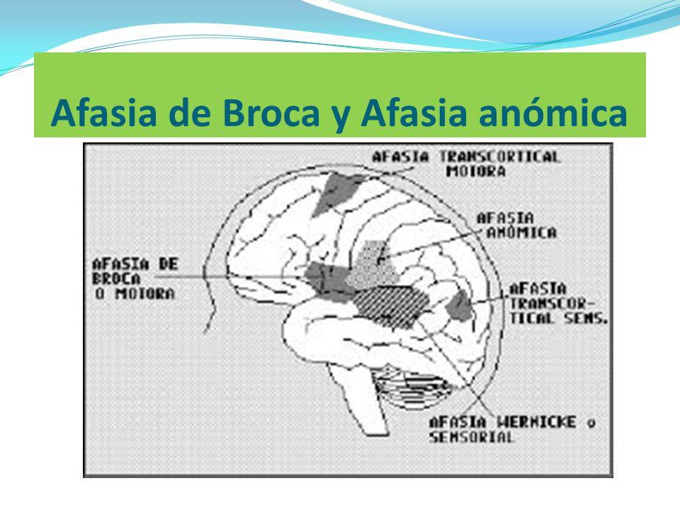 Afasia de Broca y Afasia anómica