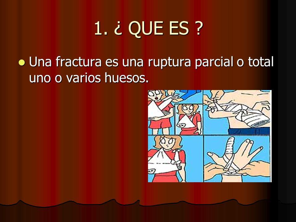 1. ¿ QUE ES Una fractura es una ruptura parcial o total uno o varios huesos.