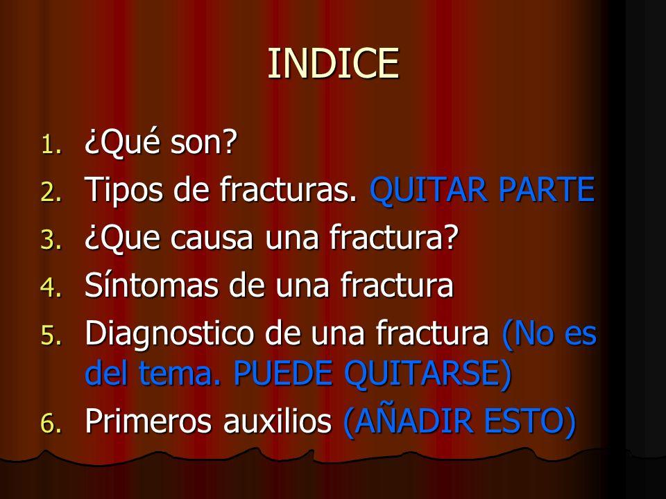 INDICE ¿Qué son Tipos de fracturas. QUITAR PARTE