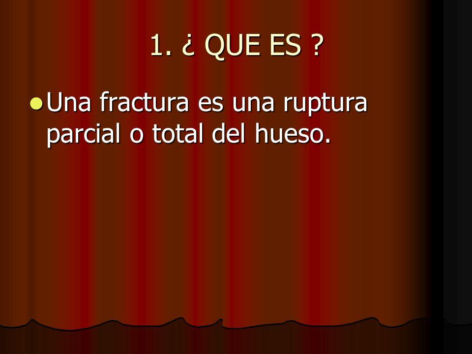 1. ¿ QUE ES Una fractura es una ruptura parcial o total del hueso.