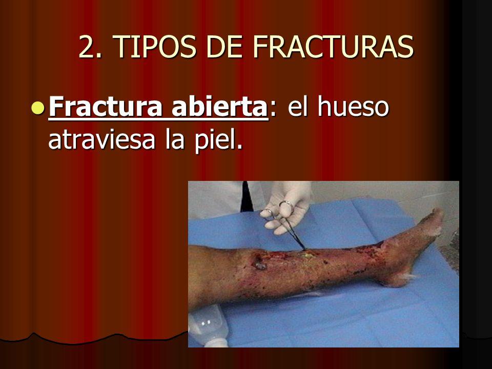 2. TIPOS DE FRACTURAS Fractura abierta: el hueso atraviesa la piel.