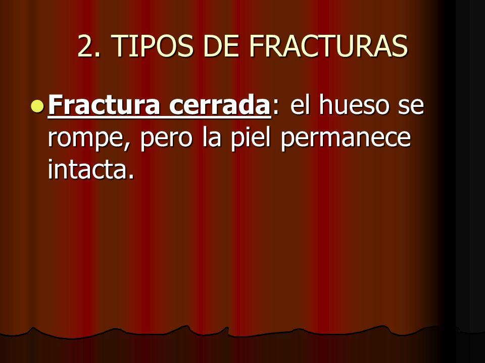 2. TIPOS DE FRACTURAS Fractura cerrada: el hueso se rompe, pero la piel permanece intacta.