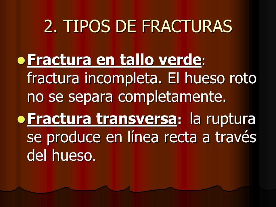 2. TIPOS DE FRACTURAS Fractura en tallo verde: fractura incompleta. El hueso roto no se separa completamente.