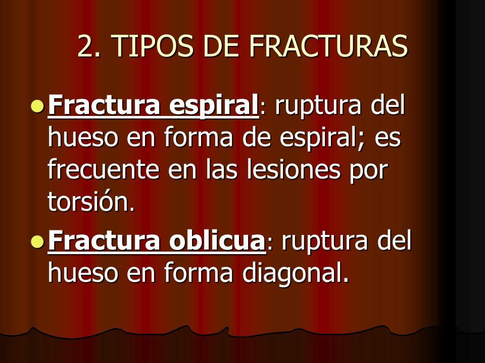2. TIPOS DE FRACTURAS Fractura espiral: ruptura del hueso en forma de espiral; es frecuente en las lesiones por torsión.