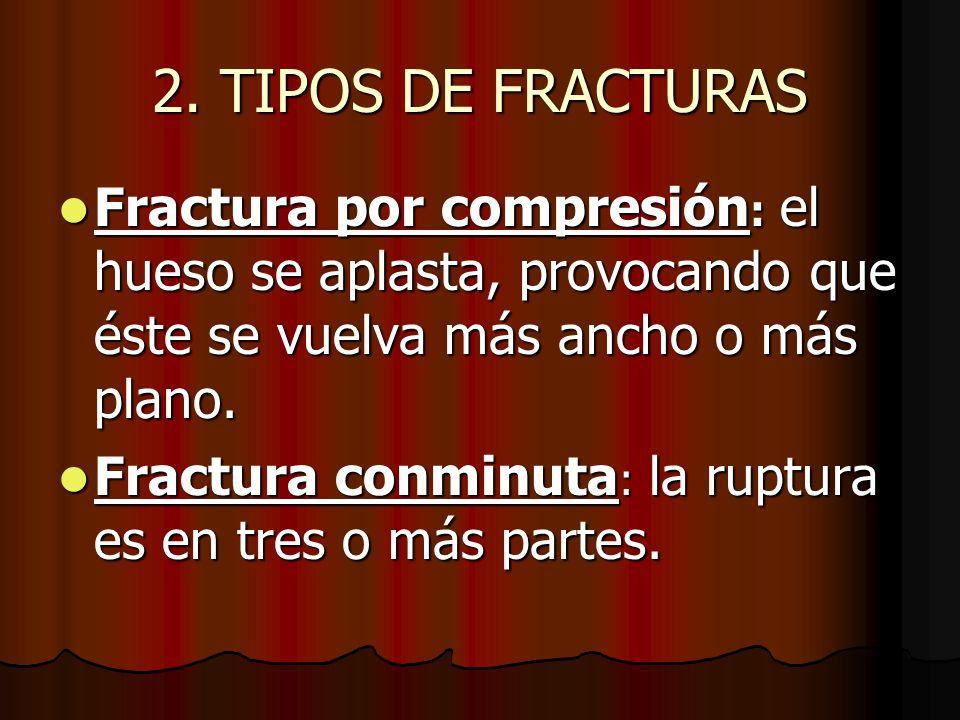 2. TIPOS DE FRACTURAS Fractura por compresión: el hueso se aplasta, provocando que éste se vuelva más ancho o más plano.