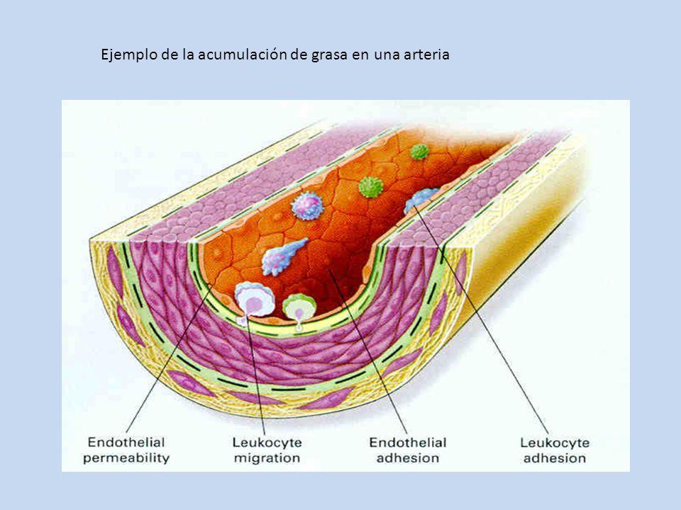 Ejemplo de la acumulación de grasa en una arteria