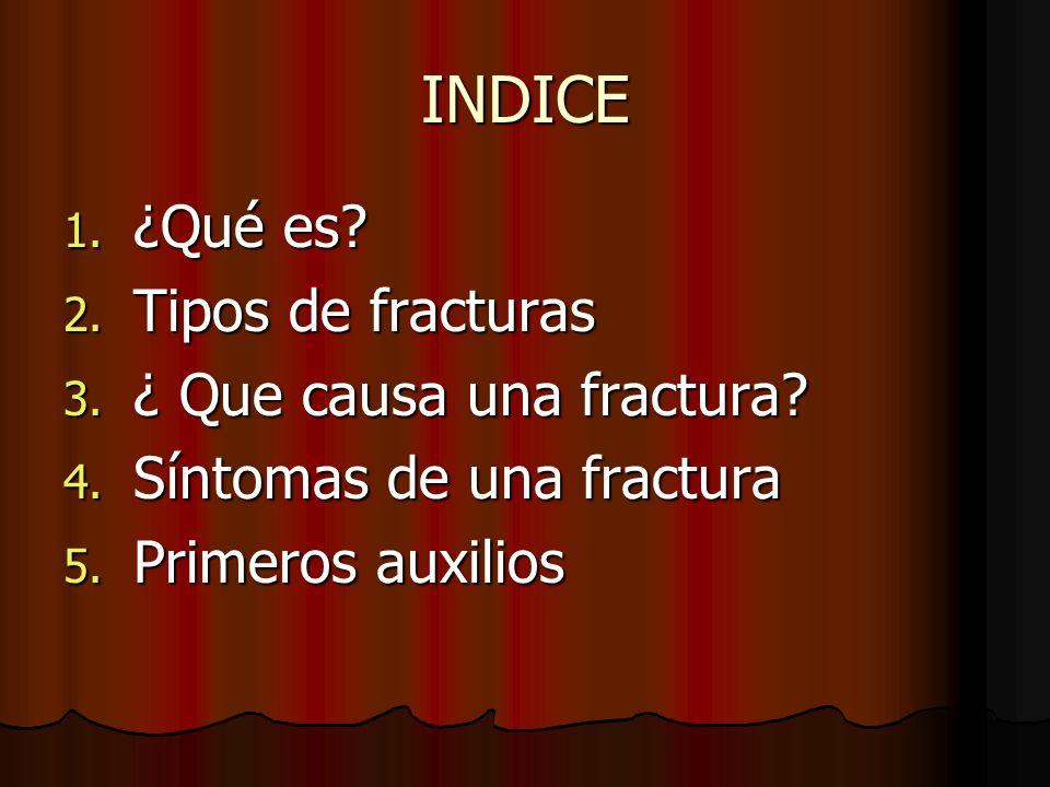 INDICE ¿Qué es Tipos de fracturas ¿ Que causa una fractura