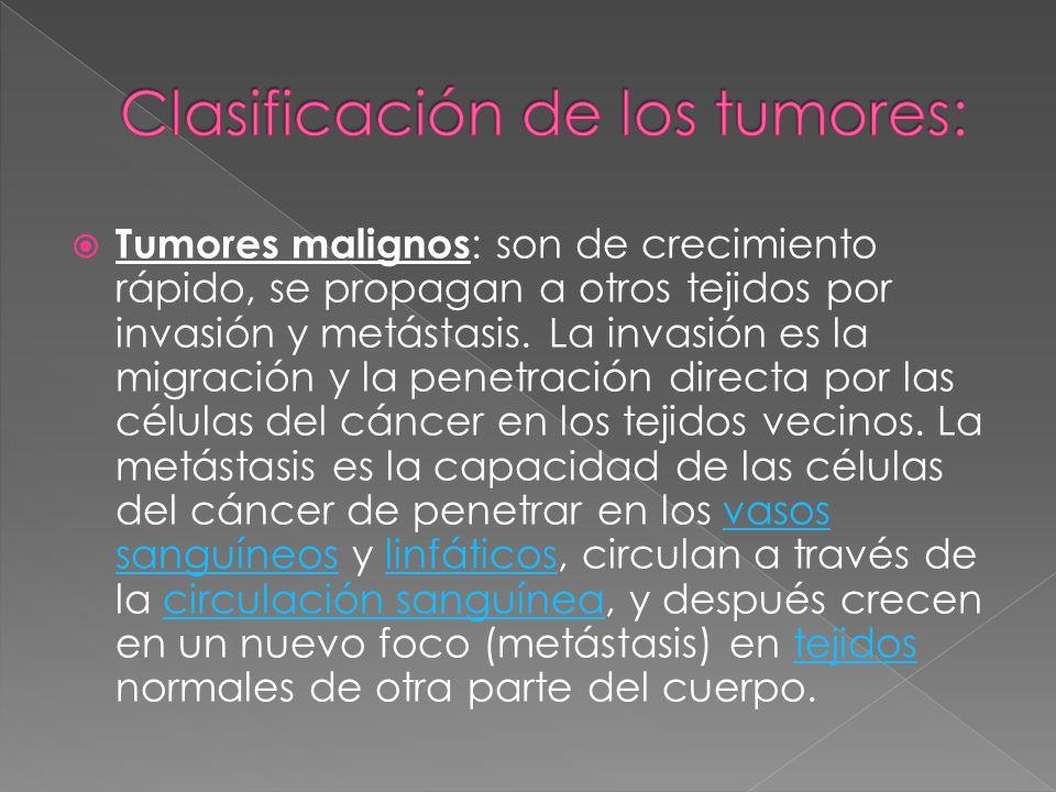 Clasificación de los tumores: