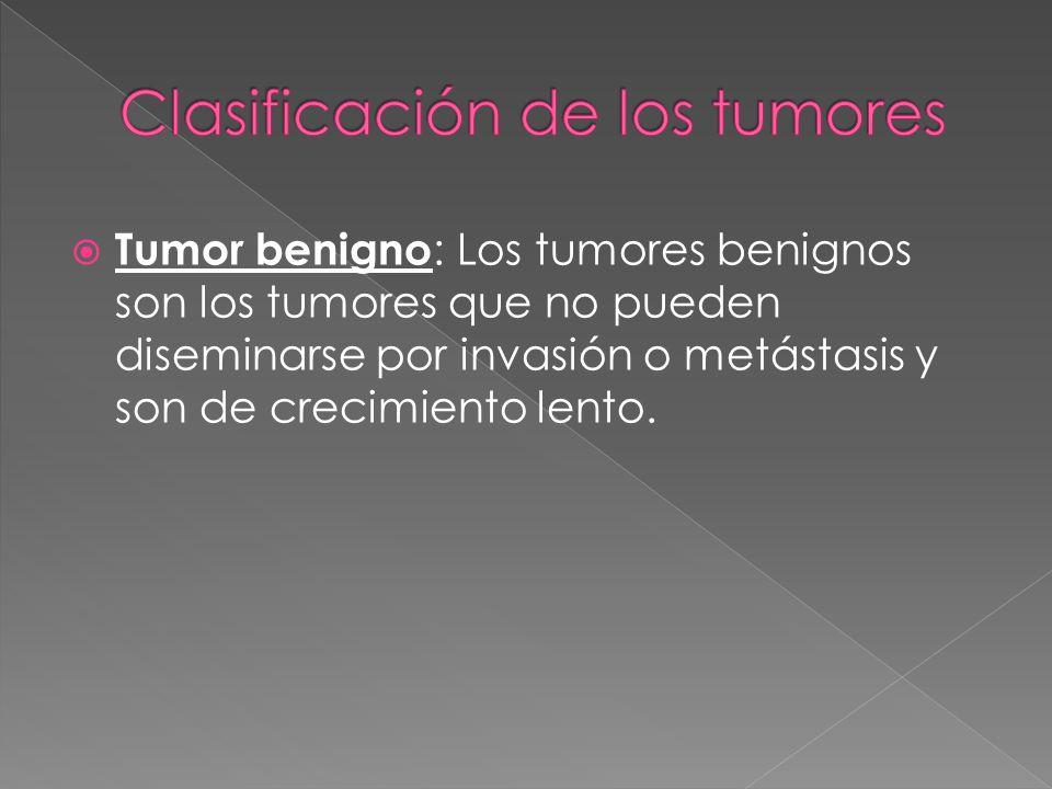 Clasificación de los tumores
