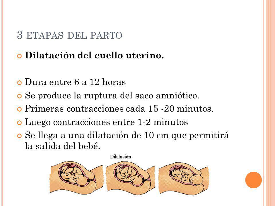 3 etapas del parto Dilatación del cuello uterino.