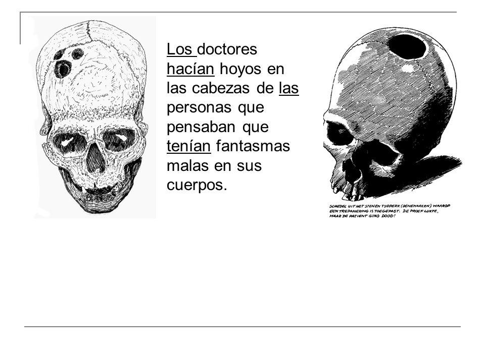 Los doctores hacían hoyos en las cabezas de las personas que pensaban que tenían fantasmas malas en sus cuerpos.