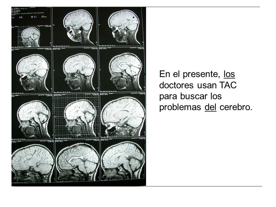 En el presente, los doctores usan TAC para buscar los problemas del cerebro.