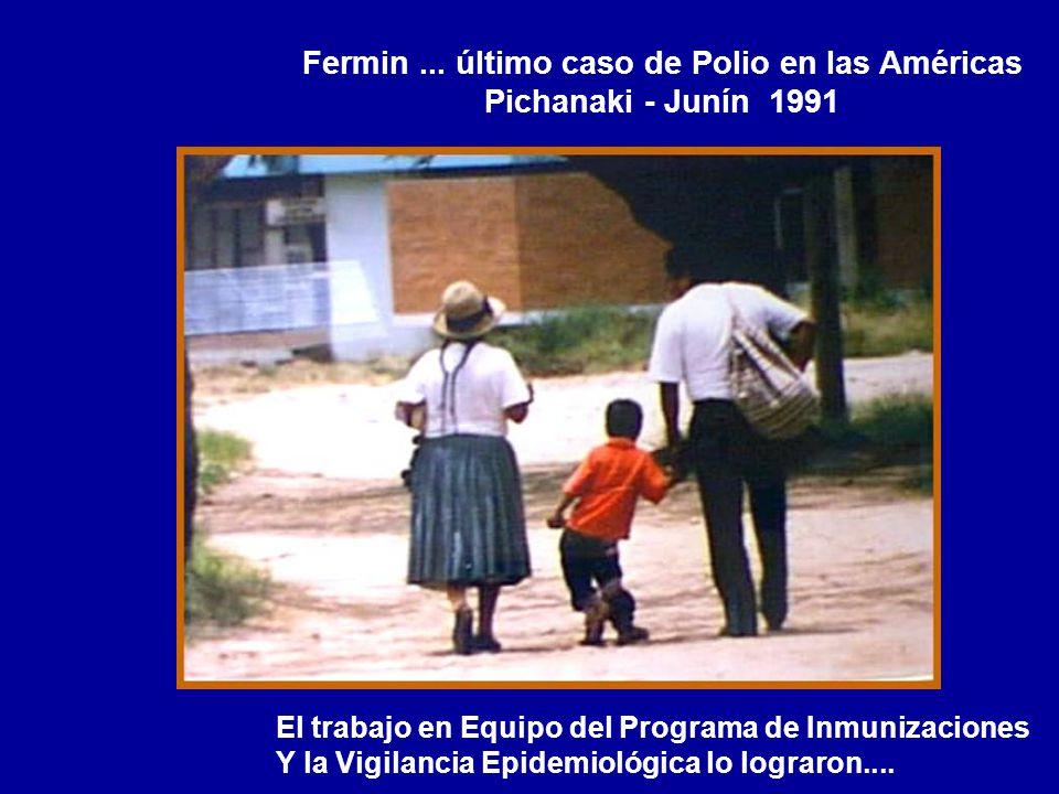 Fermin ... último caso de Polio en las Américas Pichanaki - Junín 1991