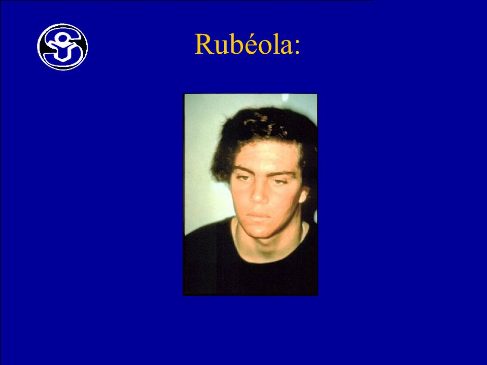 Rubéola: