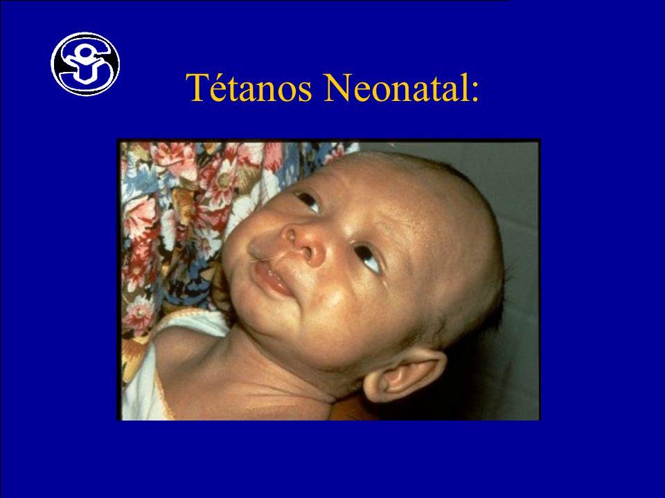 Tétanos Neonatal: