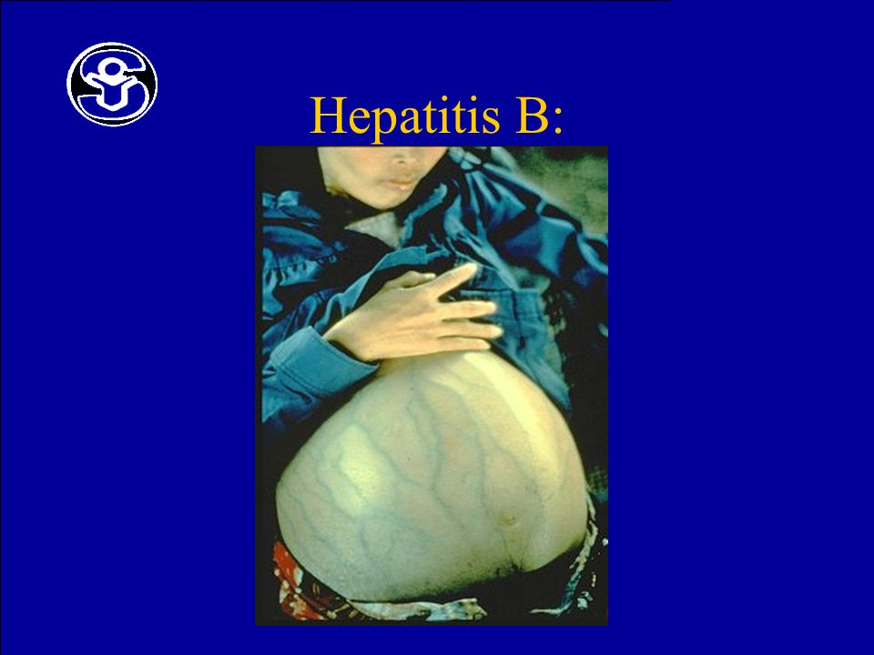 Hepatitis B: