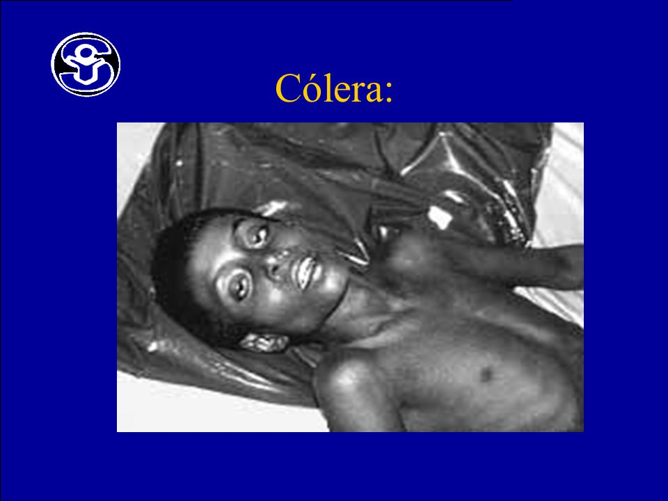 Cólera: