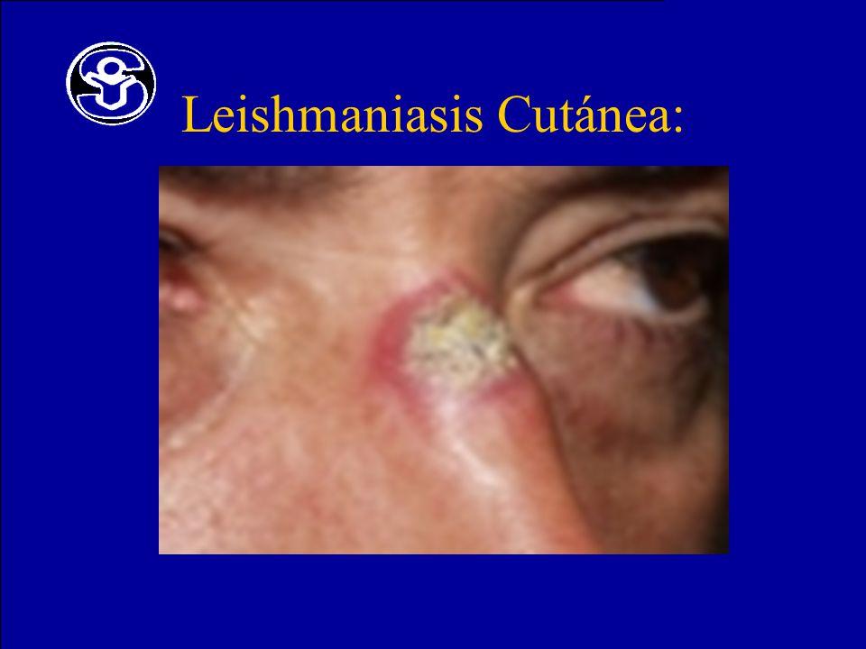 Leishmaniasis Cutánea: