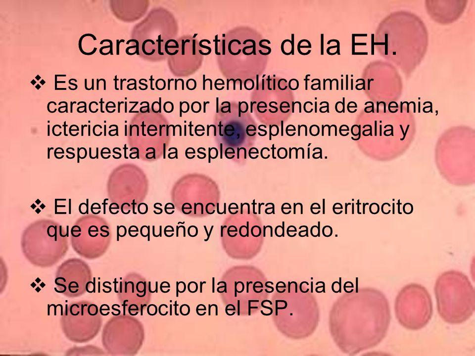 Características de la EH.