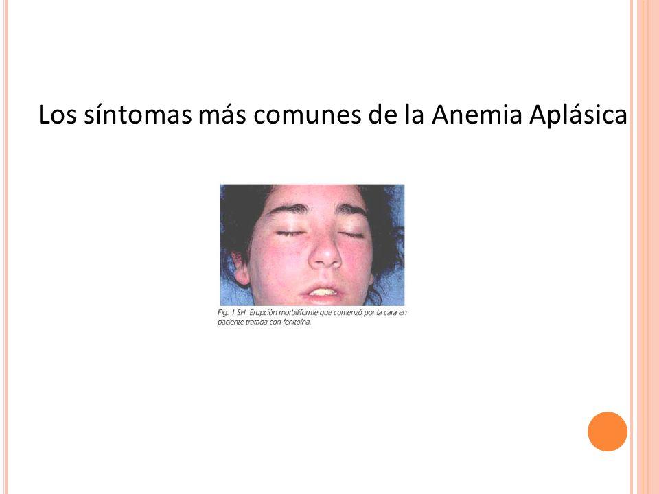 Los síntomas más comunes de la Anemia Aplásica