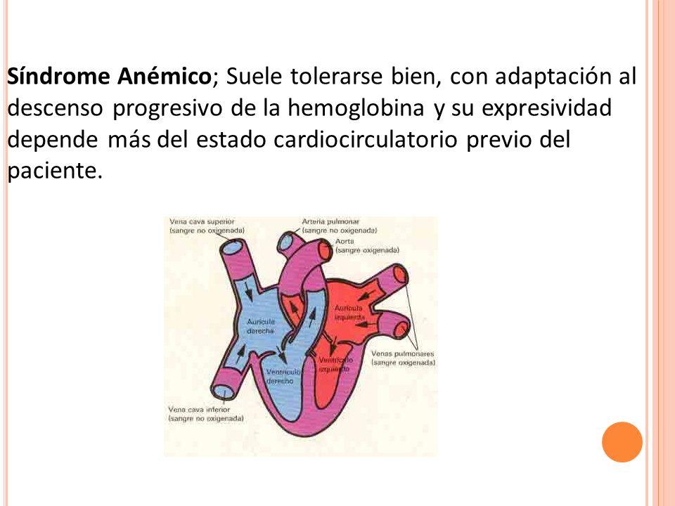 Síndrome Anémico; Suele tolerarse bien, con adaptación al descenso progresivo de la hemoglobina y su expresividad depende más del estado cardiocirculatorio previo del paciente.