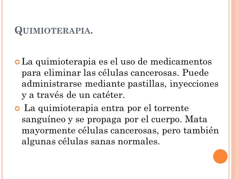 Quimioterapia.
