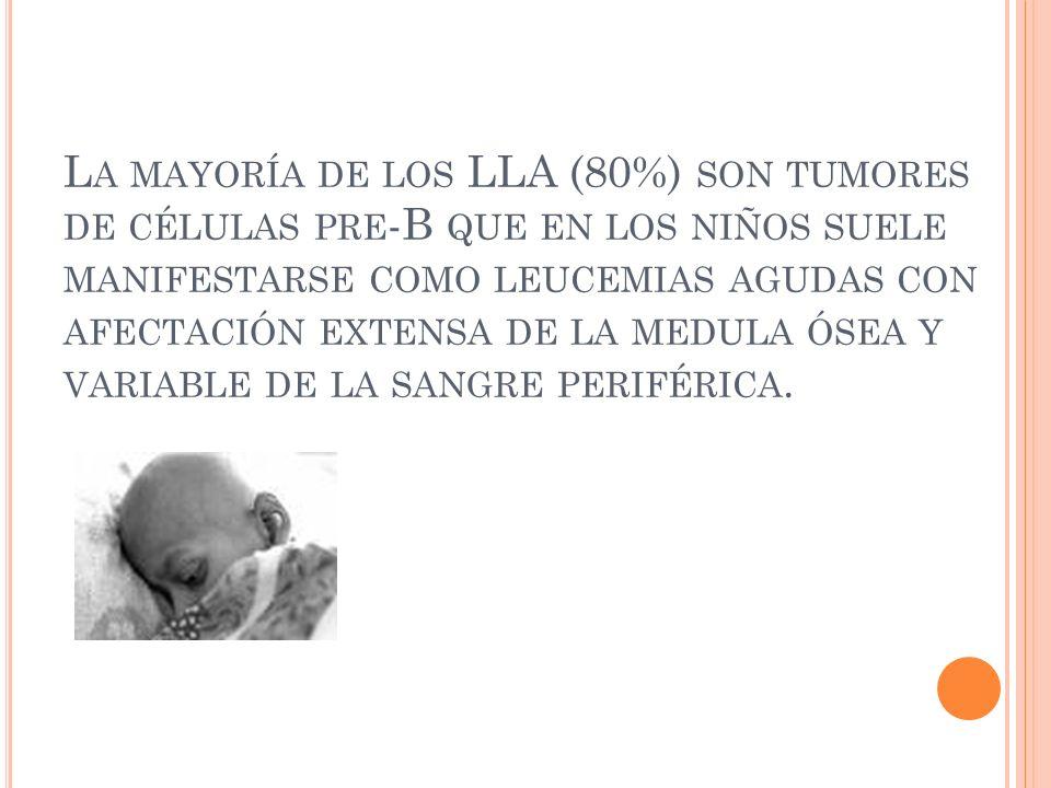 La mayoría de los LLA (80%) son tumores de células pre-B que en los niños suele manifestarse como leucemias agudas con afectación extensa de la medula ósea y variable de la sangre periférica.