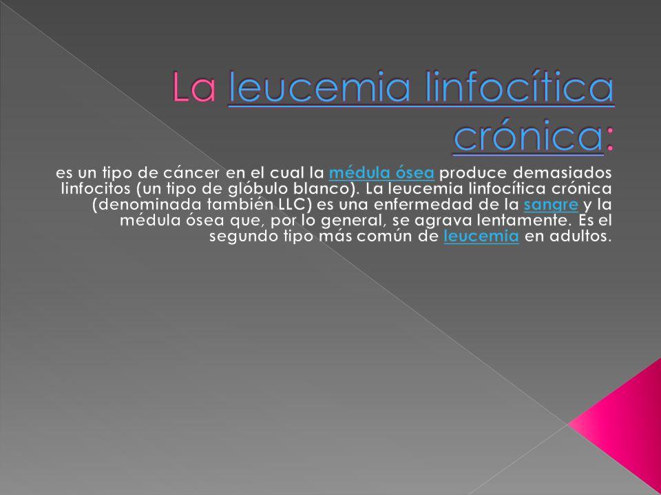La leucemia linfocítica crónica: