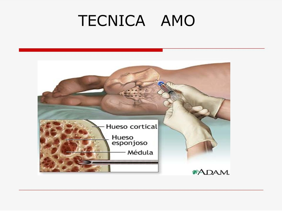 TECNICA AMO 15