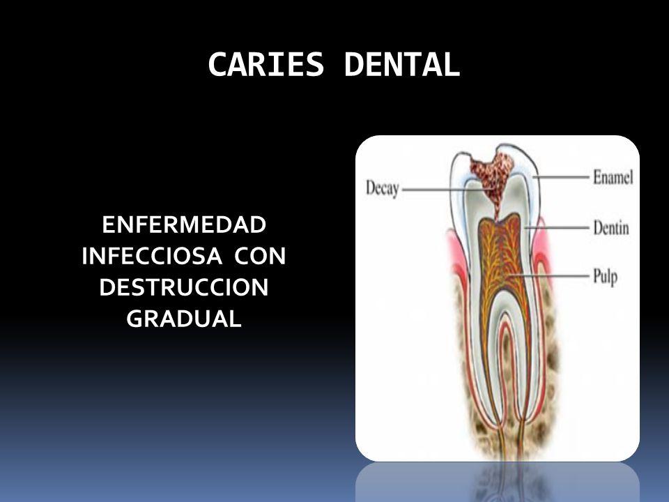 ENFERMEDAD INFECCIOSA CON DESTRUCCION GRADUAL