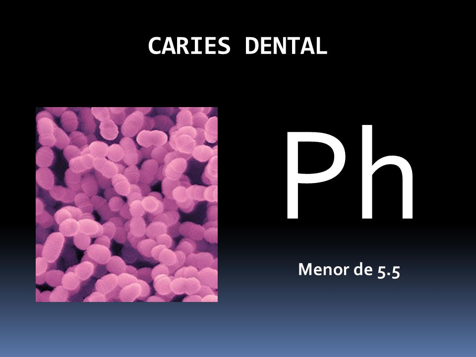 CARIES DENTAL Ph Menor de 5.5